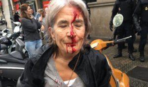 بالصور والفيديو… الشرطة تعتدي على الكتالونيين المشاركين بالاستفتاء