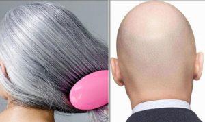 """العلماء يكتشفون """"سرّ"""" الشعر الأبيض والصلع!"""