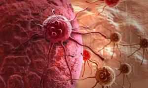الأسباب الرئيسية لمرض السرطان