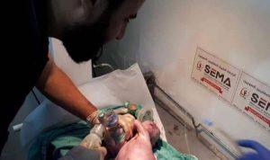 "بالصور: طفل سوري يولد ""برأسين"""