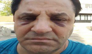 بالصور: فنان لبناني يتعرّض للضرب على مدخل جامعة الكسليك!