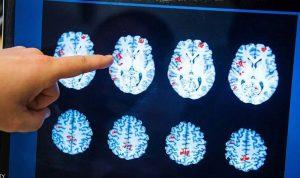 """تقنية ثورية """"لإزالة"""" سرطان الدماغ"""
