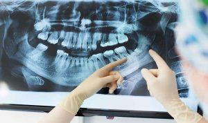 سبب مرض ألزهايمر قد يعيش داخل فمك!