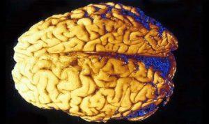 اليكم سبب غير متوقع لتطور دماغ الإنسان