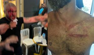 بالفيديو والصور: جرحى واعتقالات في جل الديب!