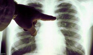 غوغل تدخل على خط اكتشاف سرطان الثدي