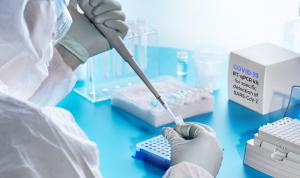 """""""الصحة"""" أجرت 84 فحص PCR في قبريخا"""
