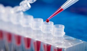 نقابة المختبرات: الكواشف الموجودة قادرة على كشف السلالة الجديدة