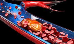 7 حالات قد تعرّضك للإصابة بجلطات الدم