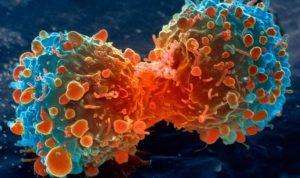 السرطان.. 8 أعراض لا تتجاهلها!!