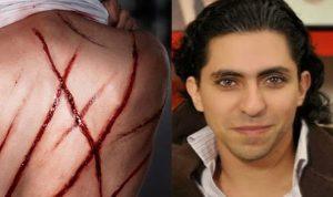 السعوديون مستاؤون: ماذا فعل رائف بدوي ليترشح لجائزة نوبل للسلام؟!